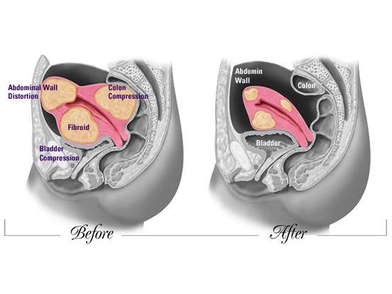 Antes y después del tratamiento con ACETATO DE ULIPISTRAL 5 mg
