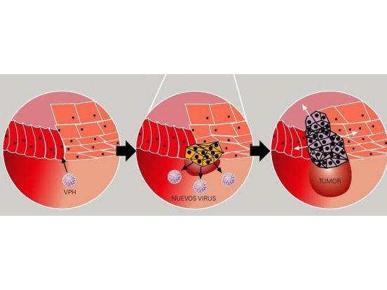Evolución de la lesión por HPV no tratada